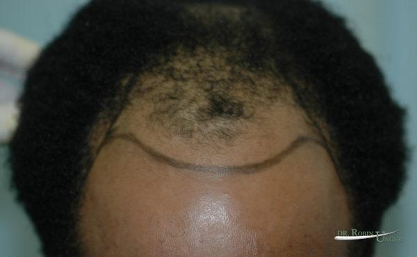 Hair Transplant in 34 Year Old Male