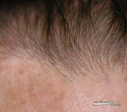 Hair Transplant in 49 Year Old Male