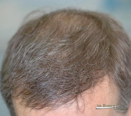Multiple Hair Transplant Surgeries For 57 Year Old Male