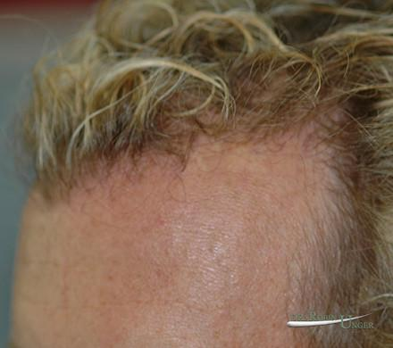 Hair Transplant in 45 Year Old Male