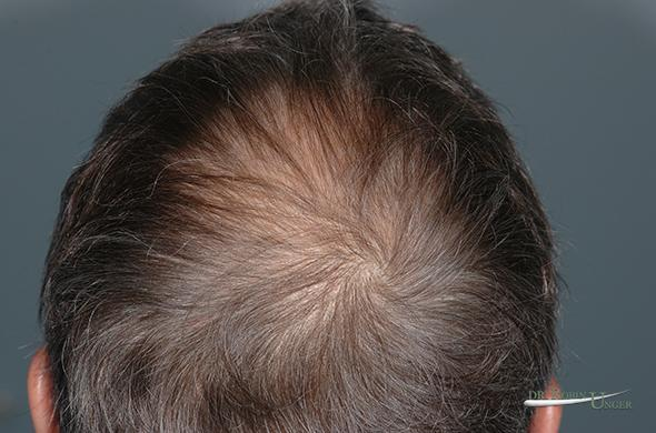 pic-4a-RK-Posterior-half-of-head-before-the-second-surgery