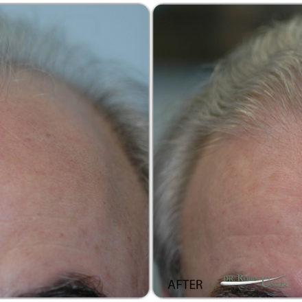Hair transplant with white hair