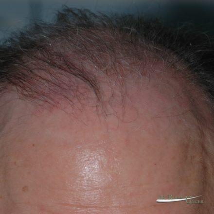 Male Hair Transplant To Front