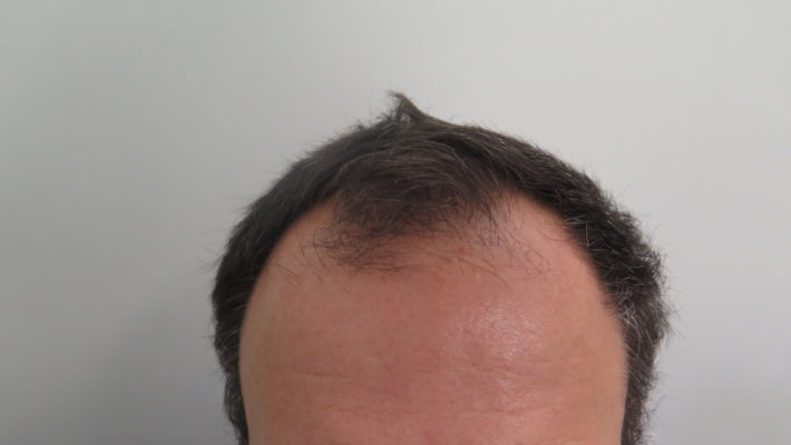 Hair Transplant in 52 Year Old Male