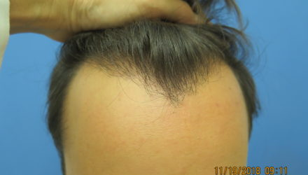 Hair Transplant in 23 Year Old Male